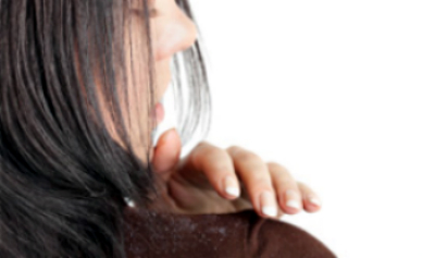 2daily-glow-woman-with-dandruff-on-shoulder-445×165