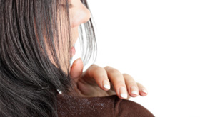 daily-glow-woman-with-dandruff-on-shoulder-445×165