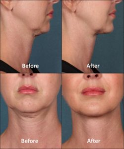 Kybella® - Skin Specialists of Allen and Addison, TexasSkin