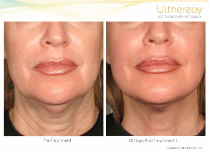 skin-lift-before-after