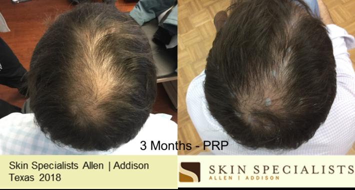 prp-3 months