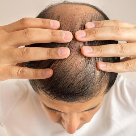 Hair Loss (Alopecia)