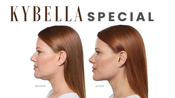 kybella-special