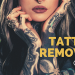 Your Tattoo Removal Guide