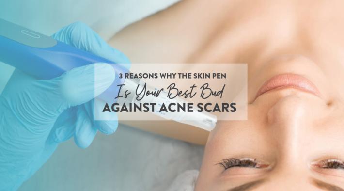 skinpen acne – banner