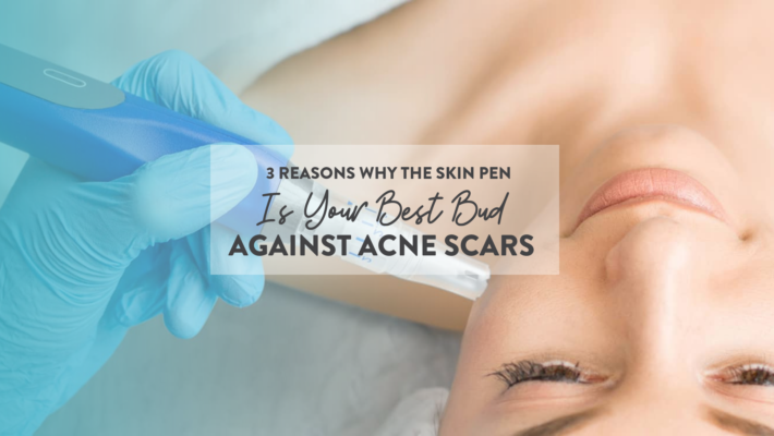 3 Reasons Why SkinPen is Your Best Bud Against Acne Scars