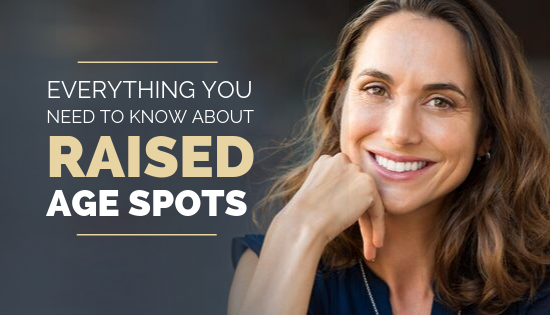Everything You Need To Know About Treating Raised Age Spots