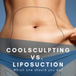 CoolSculpting™ vs. Liposuction