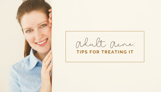 Tips for Treating Adult Acne