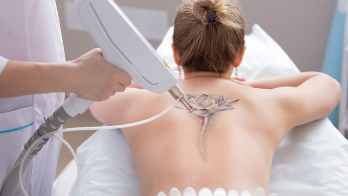 Important Things to Know About Laser Tattoo Removals