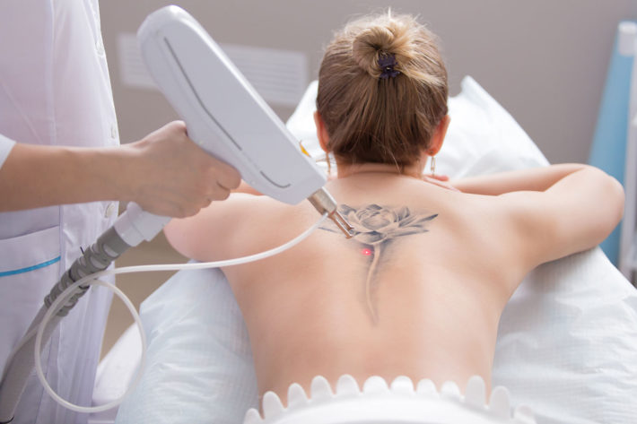 Laser-tattoo-removal-