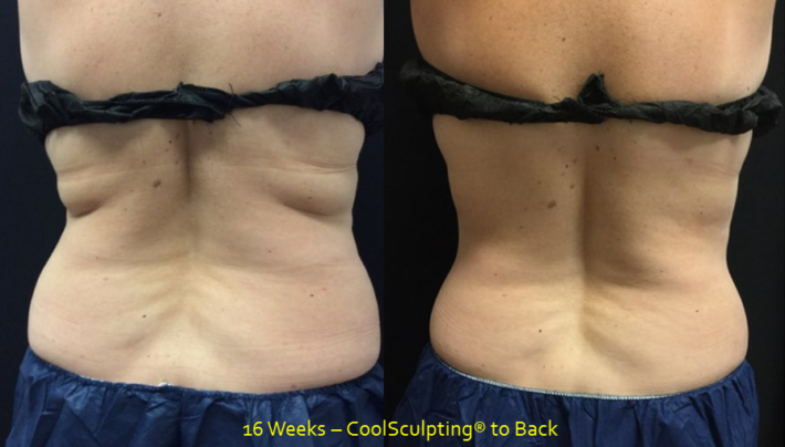 CoolSculpting 1